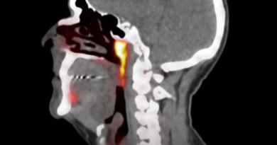 Nowy organ w ciele człowieka - zmieni życie osób chorych na nowotwory?