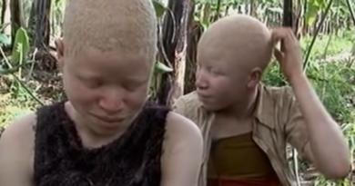 Albinosi w Afryce - czarna magia i brutalne polowania
