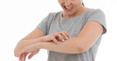 Atopowe zapalenie skóry - najwazniejsze informacje: objawy, jak rozpoznać, leczenie